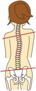 こーけん整骨院の肩こり改善法